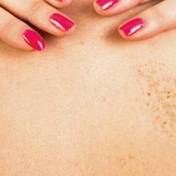Taches brunes : astuces et remèdes naturels pour les atténuer