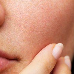 Pores dilatés : routine naturelle pour resserrer son grain de peau