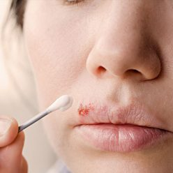 Bouton de fièvre : 5 astuces naturelles pour s'en débarrasser