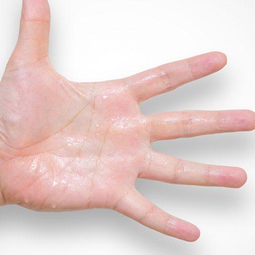Transpiration excessive : remèdes naturels pour limiter la sudation